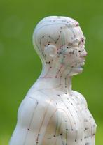 Akupunktur München, Freising, Akkupunktur